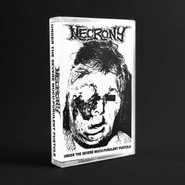Necrony - under the severe mucu-purulent pustule (cassette tape)